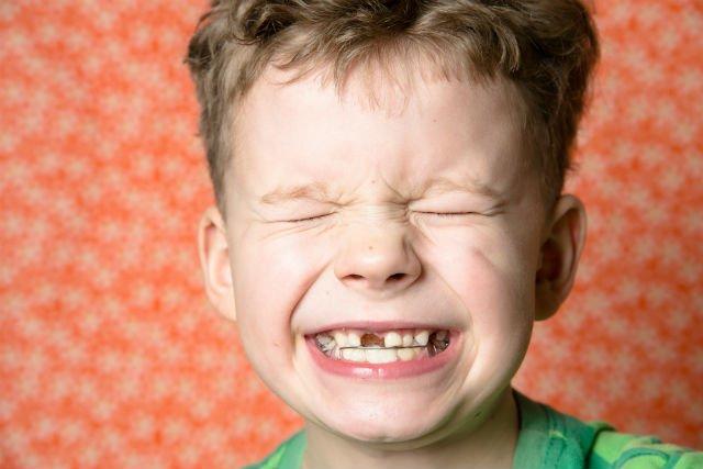 Traumi sui denti da latte