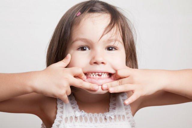 caduta dei denti da latte - il dentista dei bambini