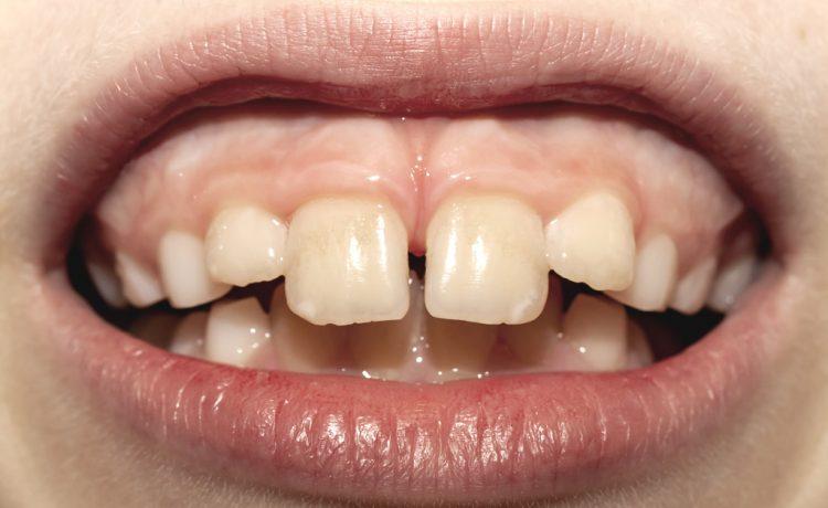 Corso ortodonzia intercettiva